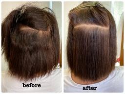 縮毛矯正のビフォーアフター